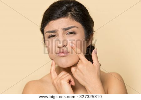 Worried Ethnic Woman Touch Skin Squeeze Pimple