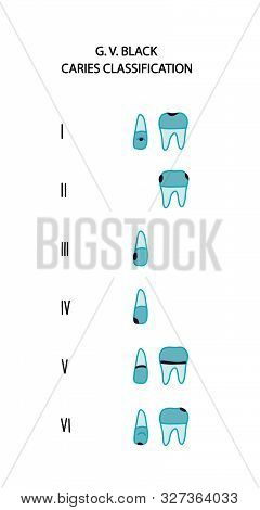 Caries Type Classification Black Six Hand Drawn Vector Illustration In Cartoon Comic Style