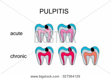 Types Of Pulpitis Hand Drawn Vector Illustration In Cartoon Comic Style Acute Chronic