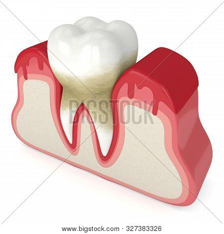 3D Render Of Tooth In Bleeding Gums