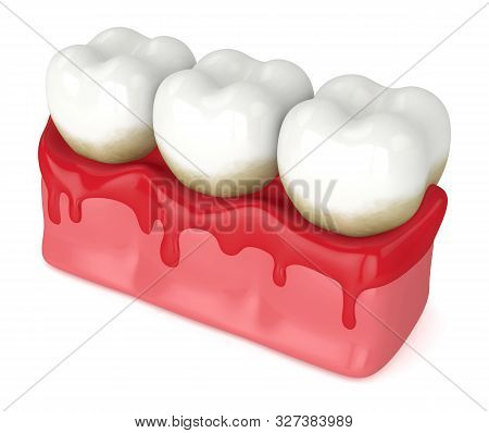 3D Render Of Teeth In Bleeding Gums