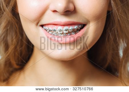 Orthodontic Treatment. Dental Care Concept. Beautiful Woman Healthy Smile Close Up. Closeup Ceramic