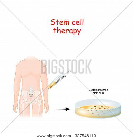 Stem Cell Therapy. Petri Dish With Culture Of Human Stem Cells