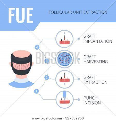 Fue Hair Transplantation Medical Infographics For Men