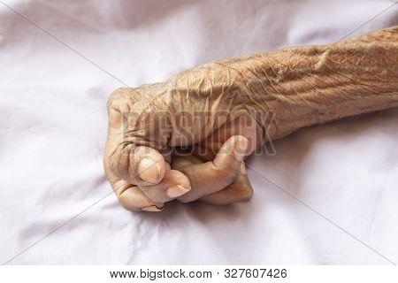 Close Up Of The Hands Of An Old Woman With Rheumatoid Arthritis. Diseases Caused By Degeneration Of