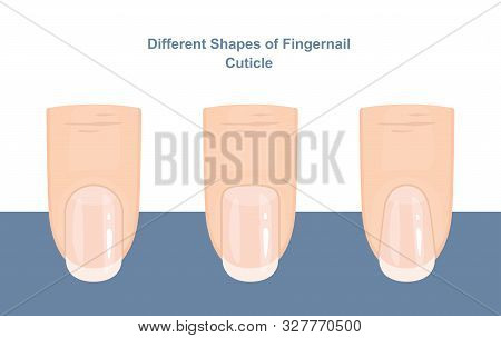 Different Shapes of Fingernail Cuticles. Manicure Guide. Vector illustration poster