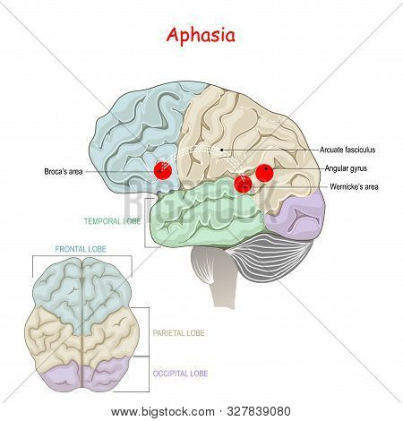 Aphasia. Is An Inability To Comprehend Or Formulate Language. Human Brain With Damage To Specific Ar