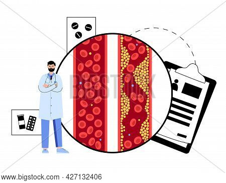 Cholesterol In Human Blood Vessels. Fat Cells In Vein And Artery. High Ldl And Hdl Level. Blocked Va