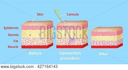 Mechanism Of Liposuction. Suction-assisted Liposuction. Hollow Tube Or Cannula, Which Is Inserted Th