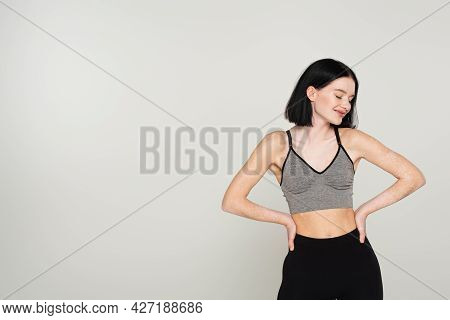 Smiling Sportswoman With Vitiligo Holding Hands On Hips Isolated On Grey