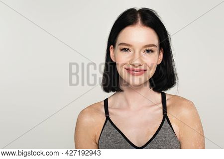 Sportswoman With Vitiligo Smiling At Camera Isolated On Grey
