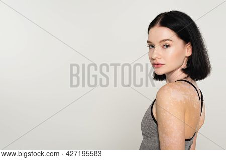 Young Sportswoman With Vitiligo Looking At Camera Isolated On Grey