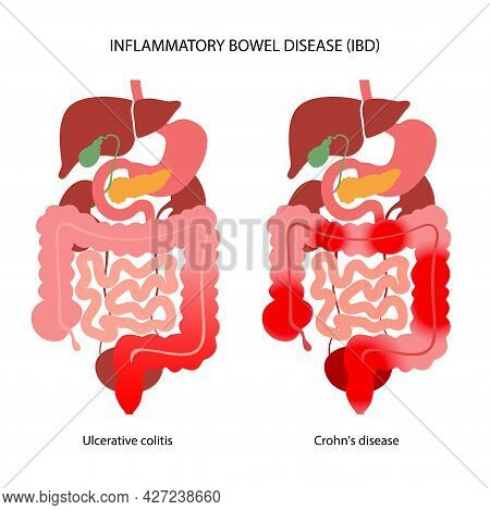 Inflammatory Bowel Disease Concept. Crohns Disease And Ulcerative Colitis. Inflammation Of The Diges