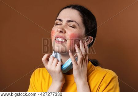 Rosacea. A Young Upset Woman Nervously Scratches Her Face With Her Hands From Irritation While Weari