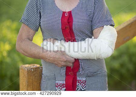An Elderly Woman With A Broken Arm.a Cast On A Woman's Arm.