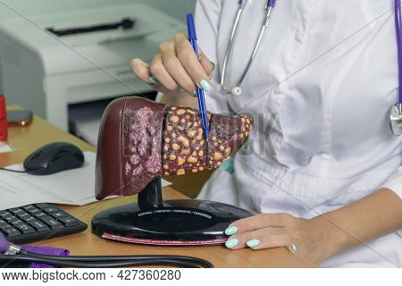 Woman Doctor Showing Patient Stage 4 Liver: Normal, Fibrotic, Cirrhotic, Cancerous. Concept Your Liv