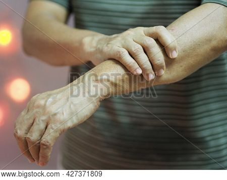 Woman Holding Hands Rare Disorder Body Immune System Attacks Nerves, Guillan Barre Syndrome, Vaccine