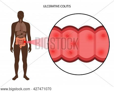 Ulcerative Colitis Concept. Inflammatory Bowel Disease. Ulcer And Inflammation Of The Digestive Trac