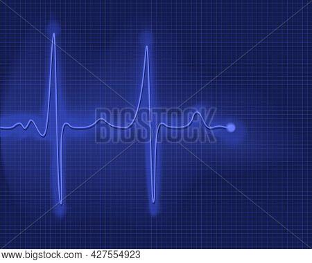 Electrocardiogram. Digital Cardiogram, Illustration Of Diagnostic Curve Cardiogram