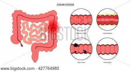 Inflammatory Bowel Disease, Colon Cancer And Polyps. Inflammation Of The Digestive System. Medical E