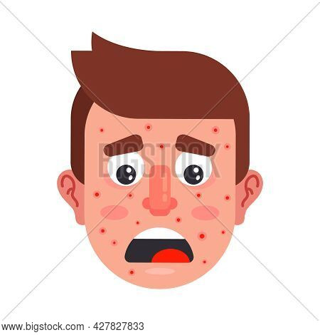 Character With Red Pimples On His Face. Upset Man With A Drink. Flat Vector Illustration.
