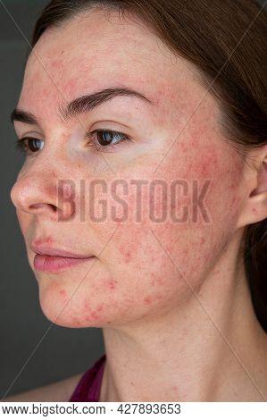Papulopustular Form Of Rosacea, Skin Erythema, Acne On The Face