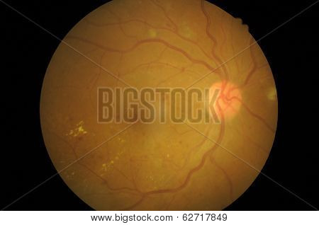 Medical photo of retinal pathology,Disorders of sclera ,cornea ,cataract
