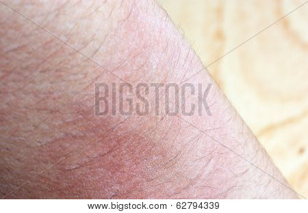 Allergic Rash Dermatitis Eczema Skin