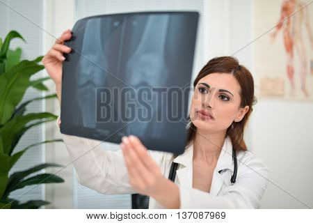 Doctor looking at a radiography