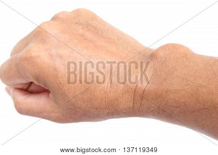 Close-up cyst at a wrist on the hand