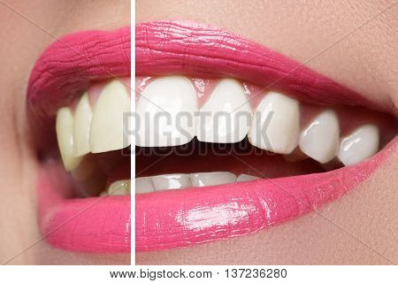 Woman teeth before and after whitening. Over white background. Happy smiling woman. Dental health concept. Oral care.