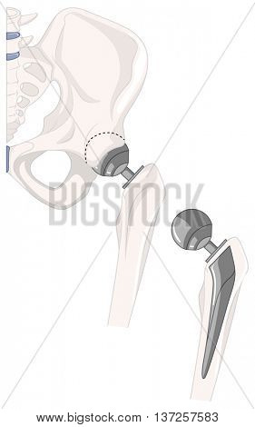 Treatment of human hip bone illustration