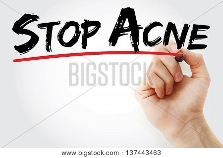 Hand Writing Stop Acne With Marker