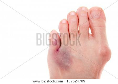 Broken little toe, big toe with bunion