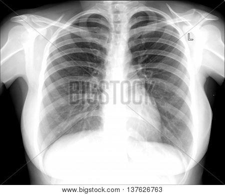 X-ray image chest skeletal, arthritis hospital diagnosis