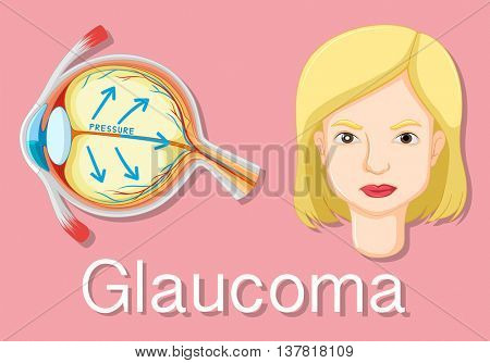 Diagram showing eyes with glaucoma illustration
