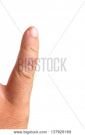Infectious wound on finger isolated on white