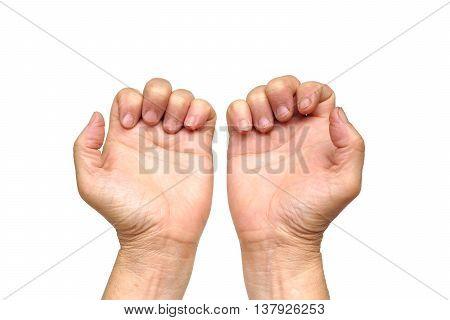 hand of female elderly suffering from Trigger finger, Digital flexor tenosynovitis, Stenosing tenosynovitis