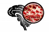 illustration of a rupture of the vessel. hemorrhagic stroke. insult. red blood cells. poster