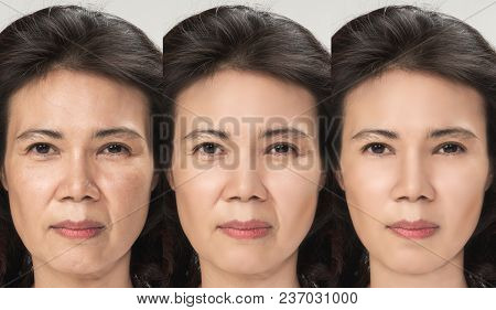 Anti Aging Process, Asian Woman Face Skin With Anti-aging Procedures, Rejuvenation, Lifting, Tighten