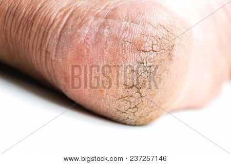 Cracked Heel Foot Be Care On Isoleted Background