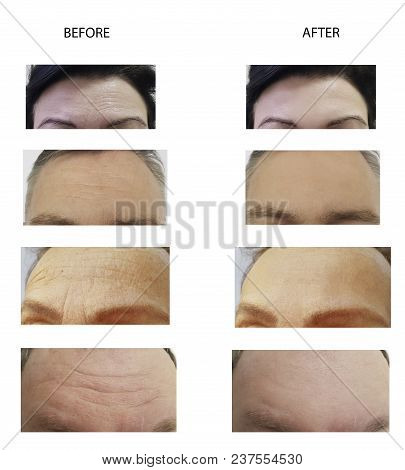 Forehead Wrinkles Man And Woman Correction, Adult, Treatment, Elderly, Concept, Skin, Lifting, Thera