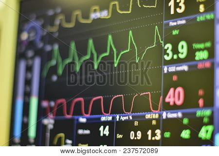 Ekg Monitor In Intra Aortic Balloon Pump Machine In Icu On Blur Background, Brain Waves In Electroen