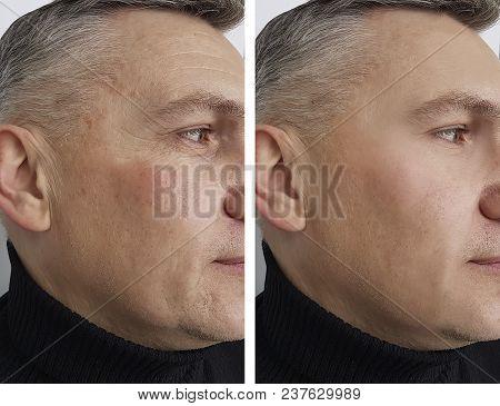 Face Man Man Wrinkles Health, Medicine, Procedure