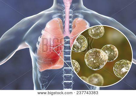 Blastomyces Dermatitidis Infection Of Lungs, Conceptual Image, 3d Illustration. Blastomycosis, Funga