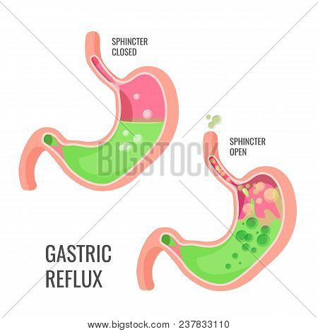 Gastric Reflux Medical Promo Poster With Human Organ. Closed And Open Sphincter. Body Malfunction Vi