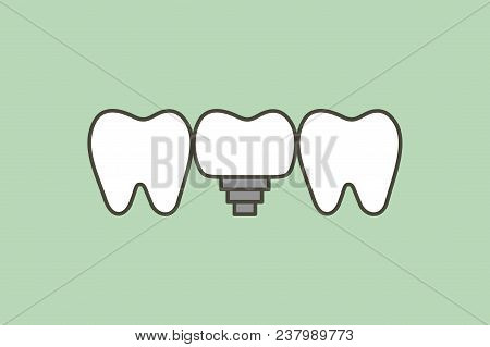Tooth Implant, Teeth Change New Root - Dental Cartoon Vector Flat Style Cute Character For Design