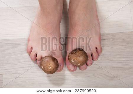 Mushrooms Between Woman's Toes