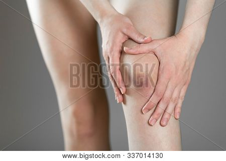 The Bruise On His Knee. Knee Pain. The Woman Holds Her Leg. Close Up.