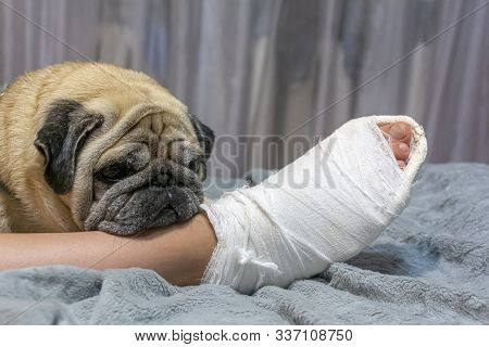 The Pug Laid His Head On The Owner's Foot. Human Foot In A Cast. The Dog Shows Pity And Compassion.